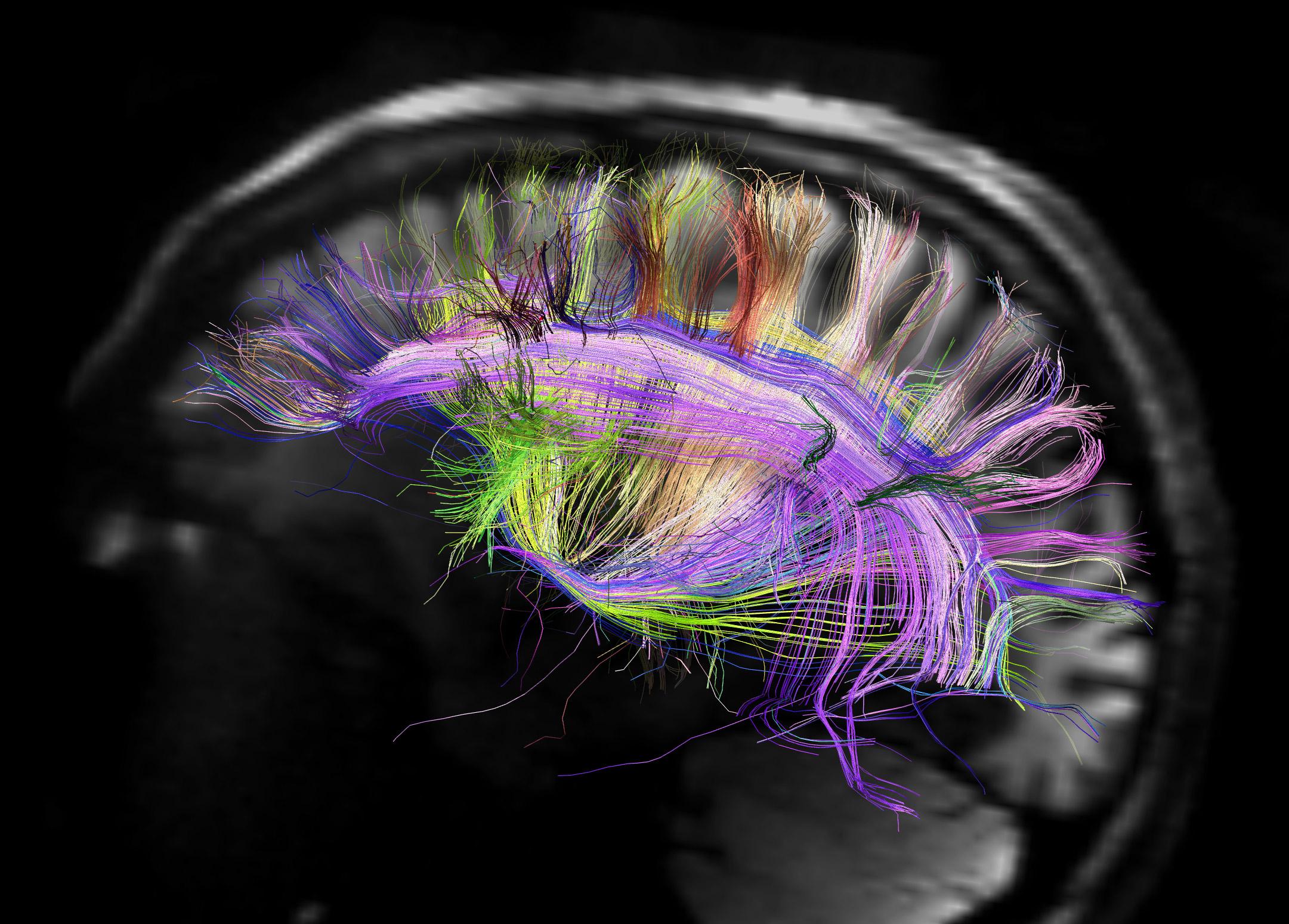 Mapa cerebral.