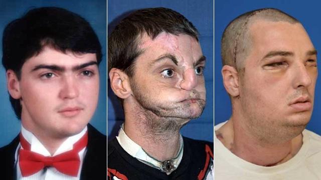 Transplante facial bem sucedido.