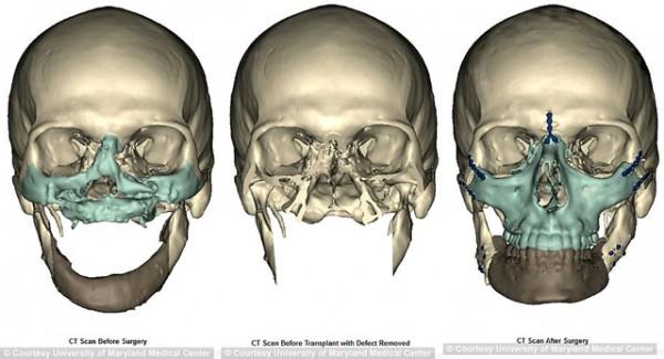 Reconstrução óssea.