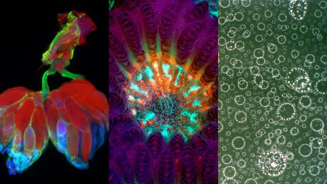 As melhores fotos da vida microscópica