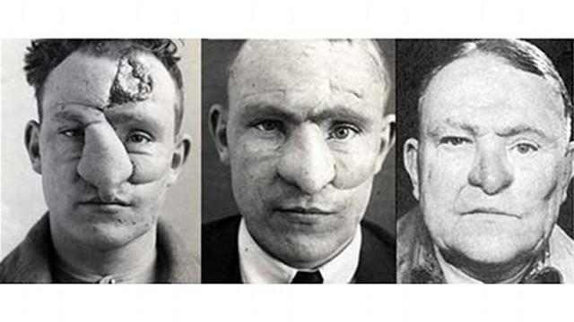 As três fases da cirurgia plástica no tenente William M. Spreckley