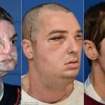 O transplante de rosto de Richard Lee Norris