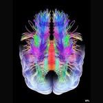 cerebro-sonho