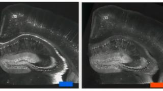cerebro de rato com acrilato