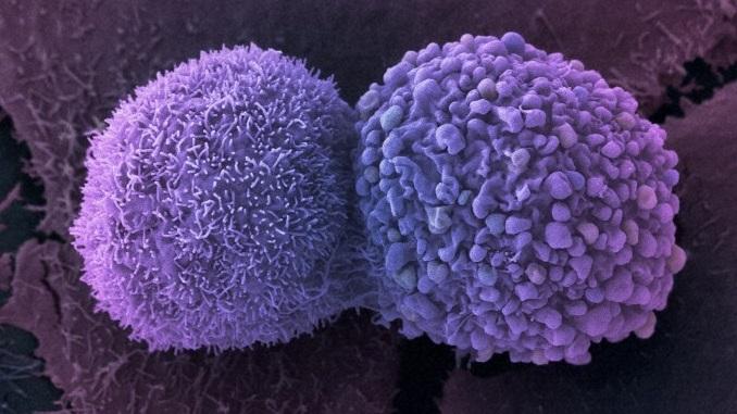 Para tratar câncer, médicos cultivam órgãos em miniatura a partir de tumores
