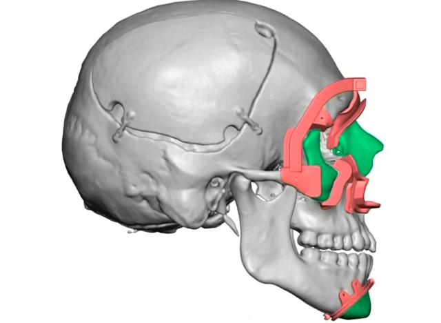 transplante-rosto-3