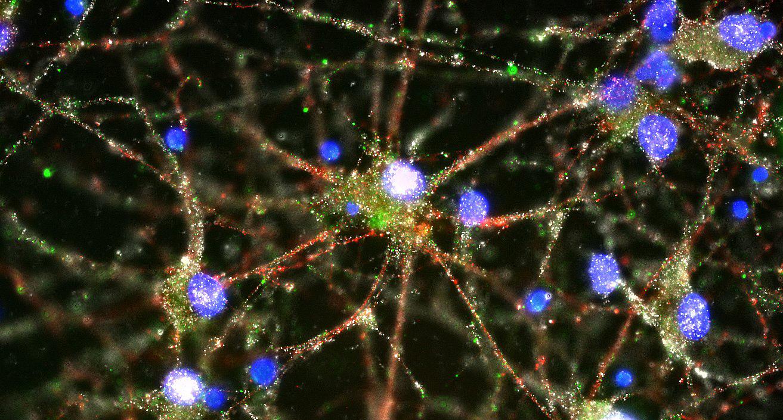 Cientistas finalmente encontraram um processo biológico por trás da esquizofrenia