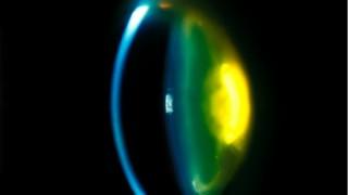 olho-celulas-tronco