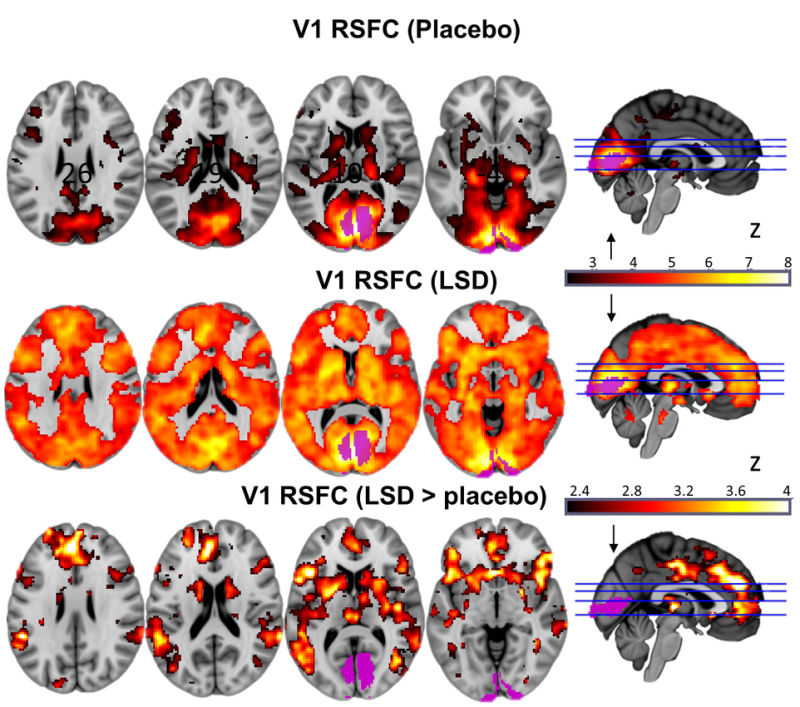 cortex-efeitos