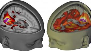 efeitos-lsd-cerebro