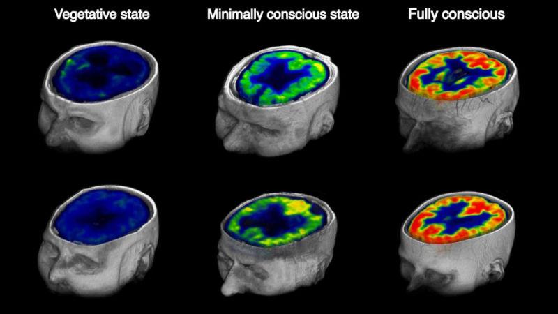 metabolismo-glicose-cerebro