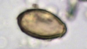 Pesquisadores investigam história de cocô antigo para desvendar história de doenças contagiosas