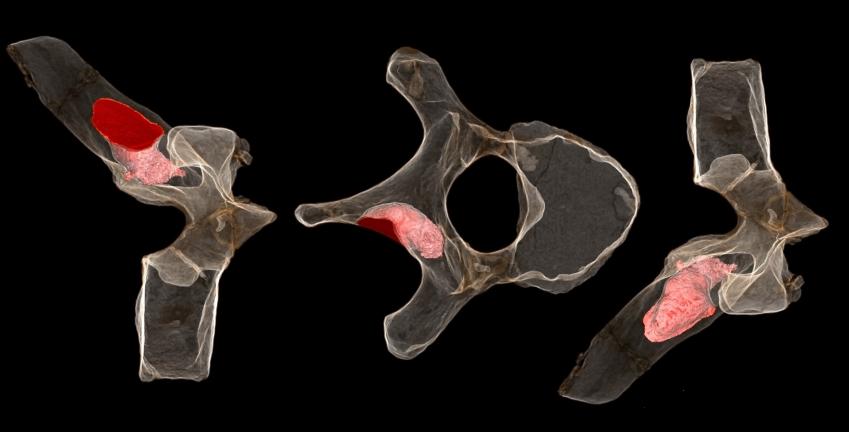 tumor-vertebra