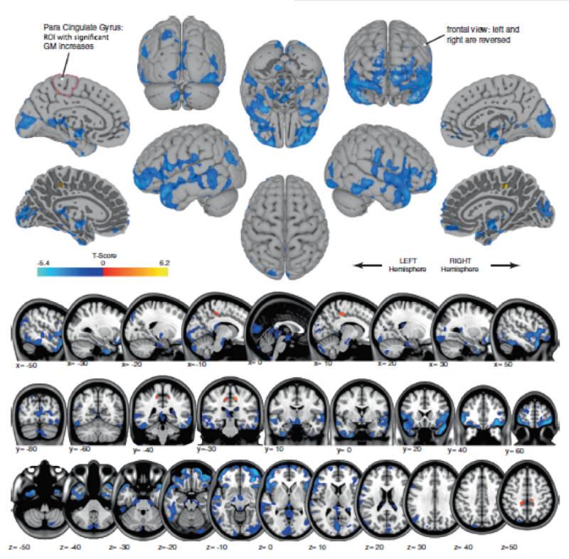 nasa-cerebro-1