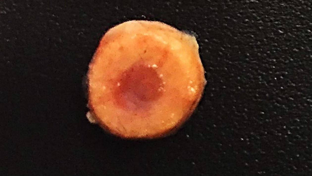 implante-osso-sintetico