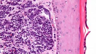 virus-cancer