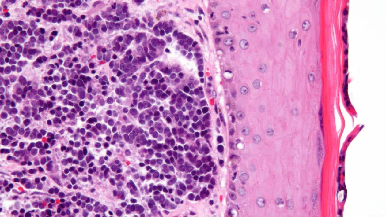 Este vírus cancerígeno dorme por anos antes de atacar seu corpo