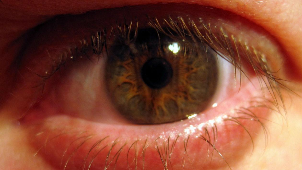 bacterias-olhos