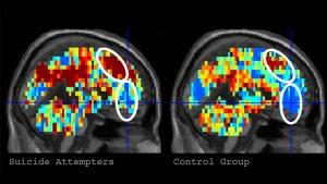 Inteligência artificial usa exames cerebrais para detectar tendências suicidas nas pessoas