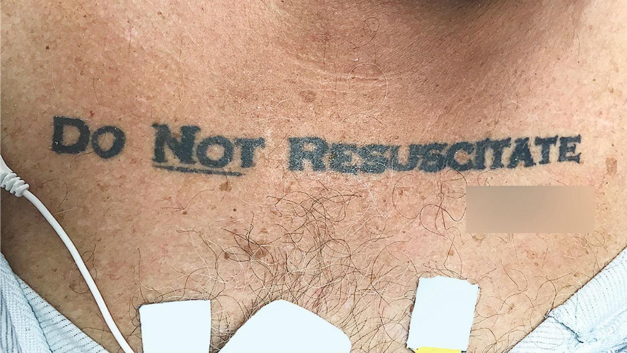"""Paciente inconsciente com """"não ressuscitar"""" tatuado no corpo causa dilema ético em hospital"""