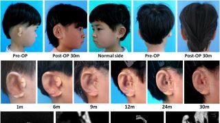 orelhas-laboratorio-ebiomedicine