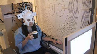scanner-cerebral-nottingham