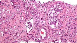 cancer-prostata-wiki