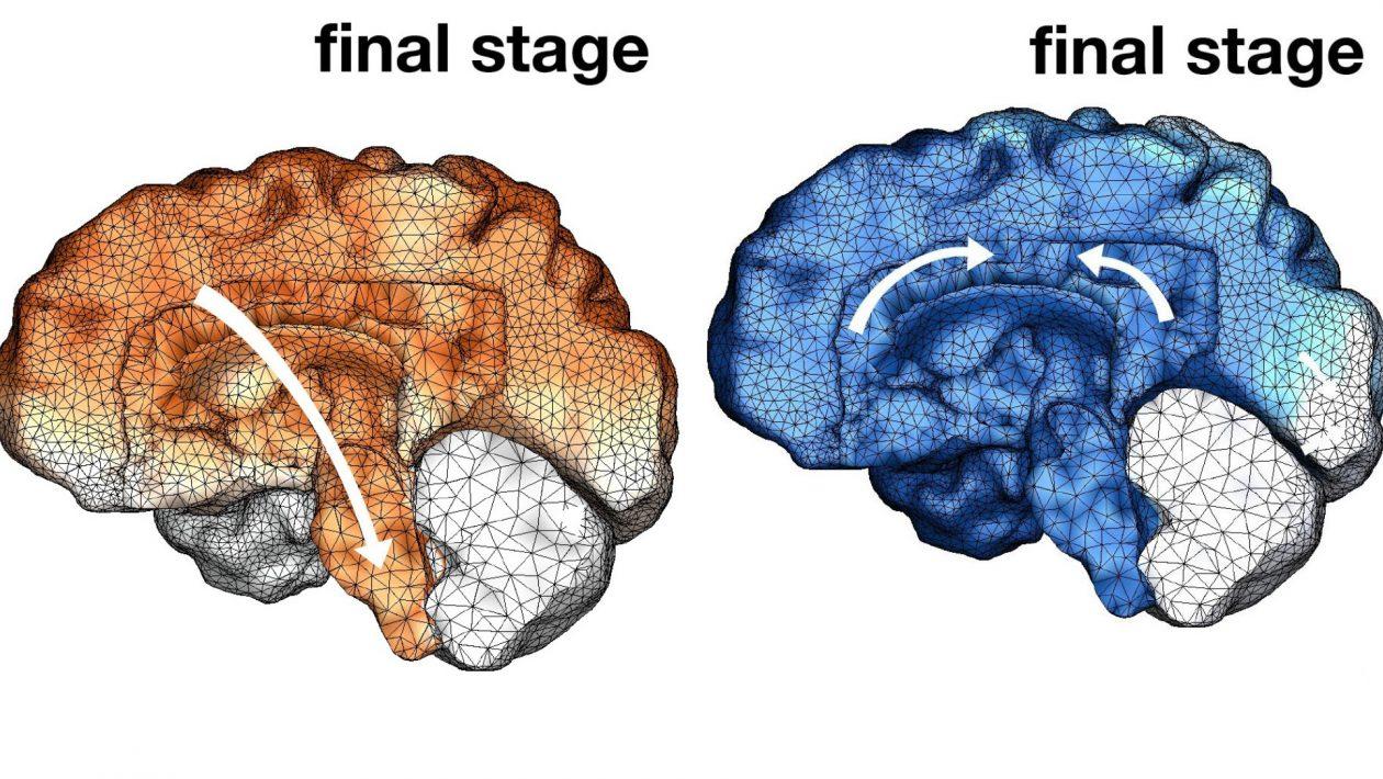 Isto é o que ocorre com o seu cérebro quando é tomado pela doença de Alzheimer