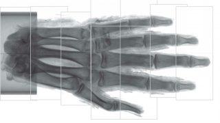 mao-radiografia-rsna