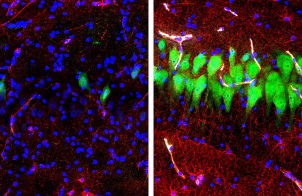 Diagrama mostra atividade dos neurônios e de células dos cérebros dos porcos