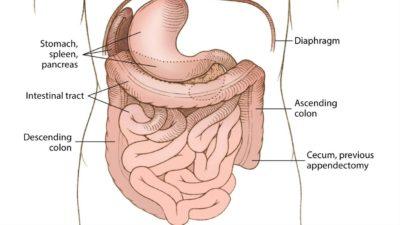 Ilustração da condição rara situs inversus com levocardia