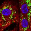 Partículas nanoceria (verde) misturando-se com células (azul)