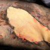 Enxerto de pele de peixe colocado em cachorro com queimadura