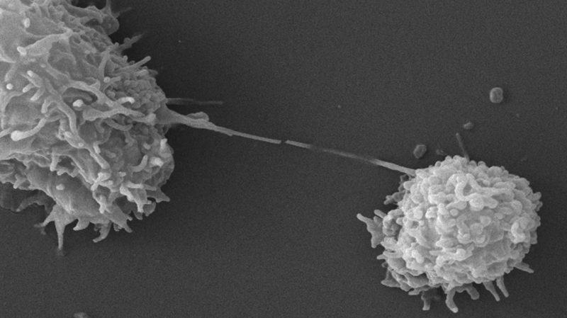 Dois protozoários Acanthamoeba vistos sob um microscópio eletrônico de varredura. Imagem: Janice Haney Carr (CDC/Catherine Armbruster; Margaret Williams)