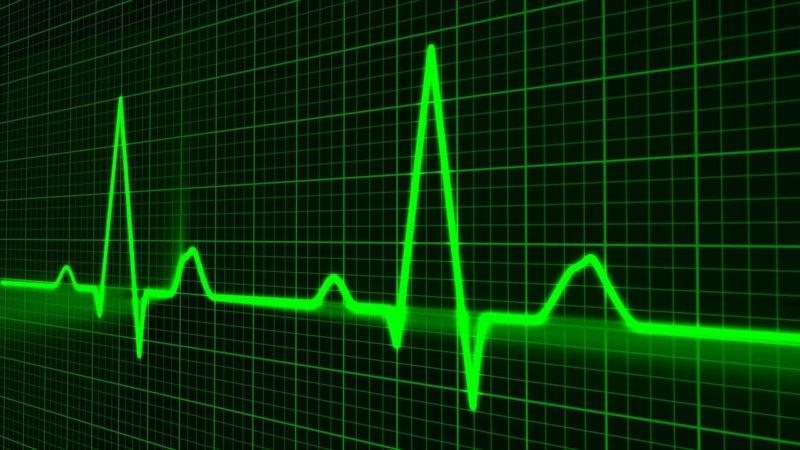 Imagem de monitor de atividade cardíaca
