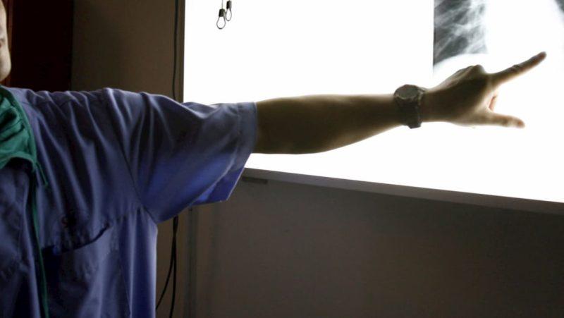 Médico aponta para raio-x