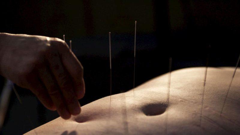 Barriga de uma pessoa com agulhas de acupuntura