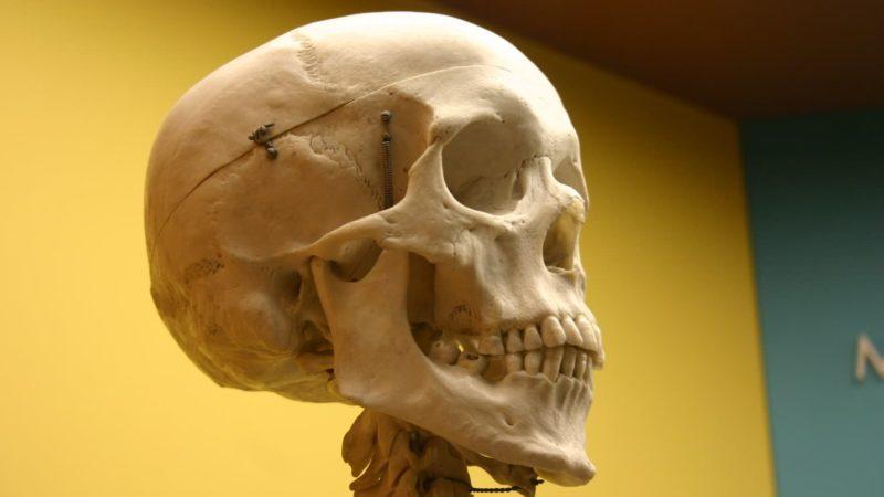 Seus ossos liberam um hormônio que faz você entrar em pânico, diz estudo