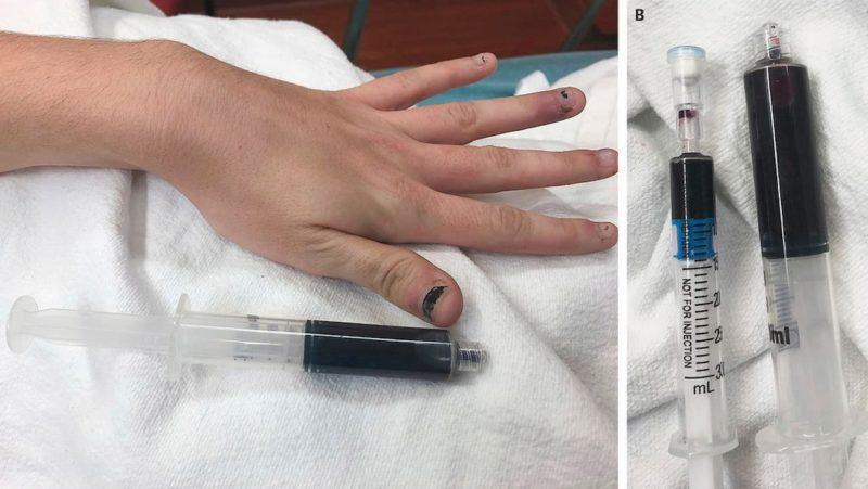 A imagem está dividida em duas partes. Na primeira parte, vê-se a mão da mulher com tom levemente azulado e uma seringa com conteúdo bastante escuro. Na segunda parte, duas seringas, uma com conteúdo azul bastante vívido e outra com conteúdo azul bastante escuro.