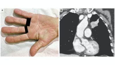 A mão da brasileira ao lado da imagem da tomografia computadorizada. Crédito: Denis Miyashiro, M.D., e Jose A. Sanches/New England Journal of Medicine)