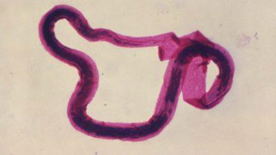 Fotomicrografia de Brugia malayi em forma larval, uma das várias lombrigas que podem causar filariose linfática