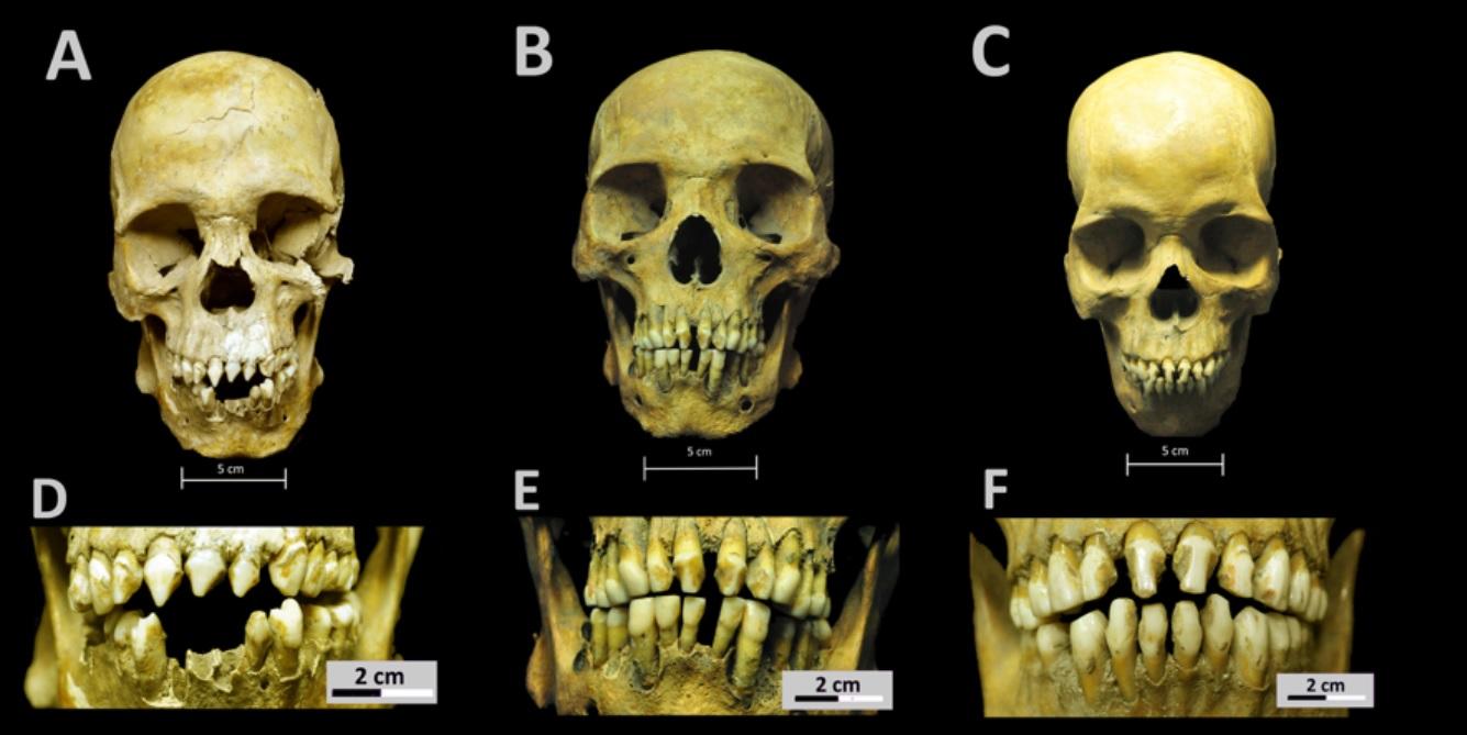 Imagem de três crânios e três arcadas dentárias, identificadas com letras de A a F. Os dentes têm ornamentos.