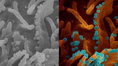 Imagem de microscópio eletrônico da excreção viral do SARS-CoV-2