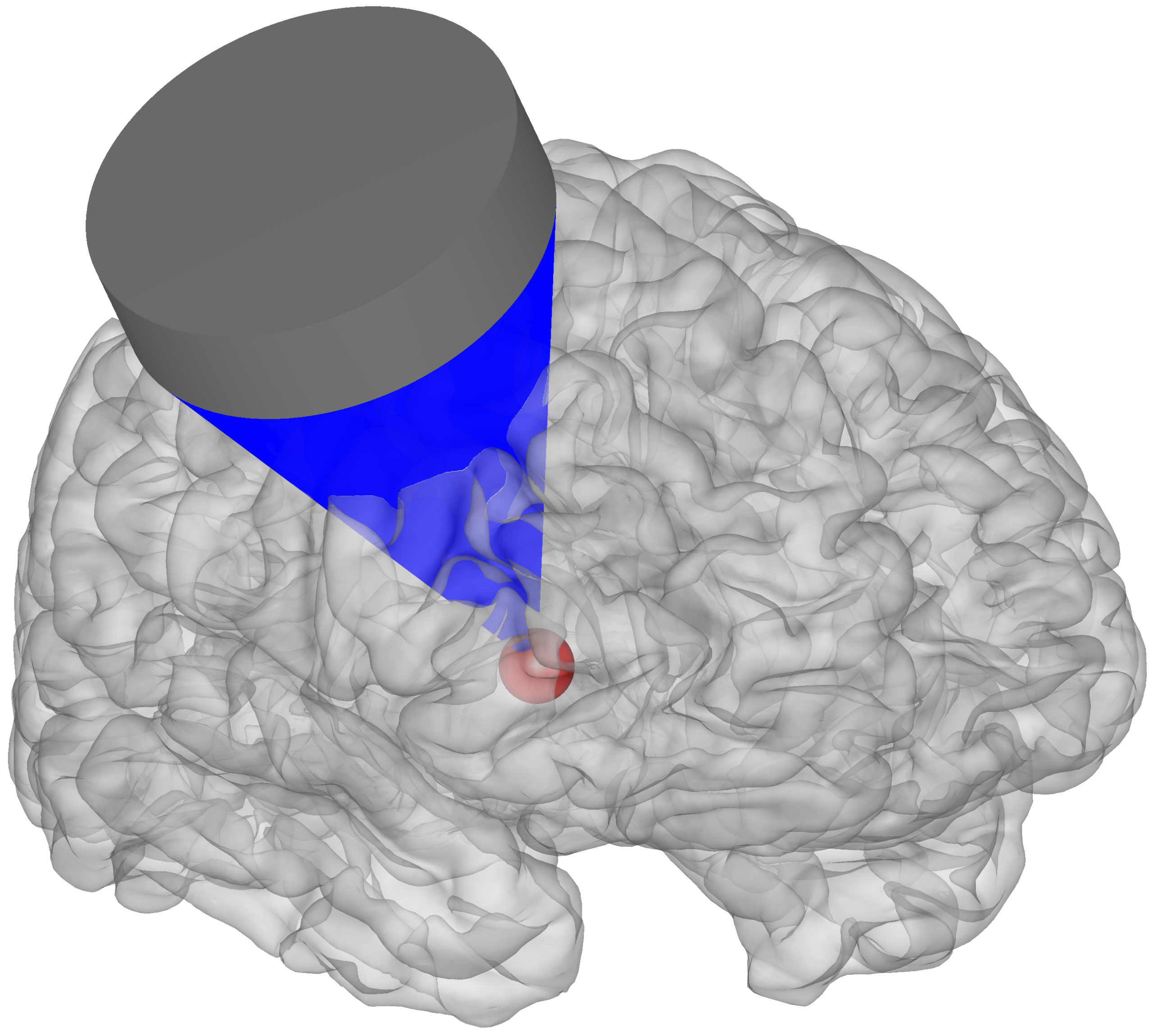 Representação gráfica do alvo de estímulo do cérebro com ultrassom. Crédito: Jan Kubanek