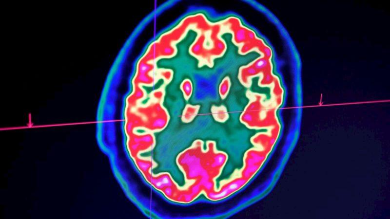 Imagem de cérebro humano tirada por um tomógrafo de emissão de pósitrons, também chamado de PET scan