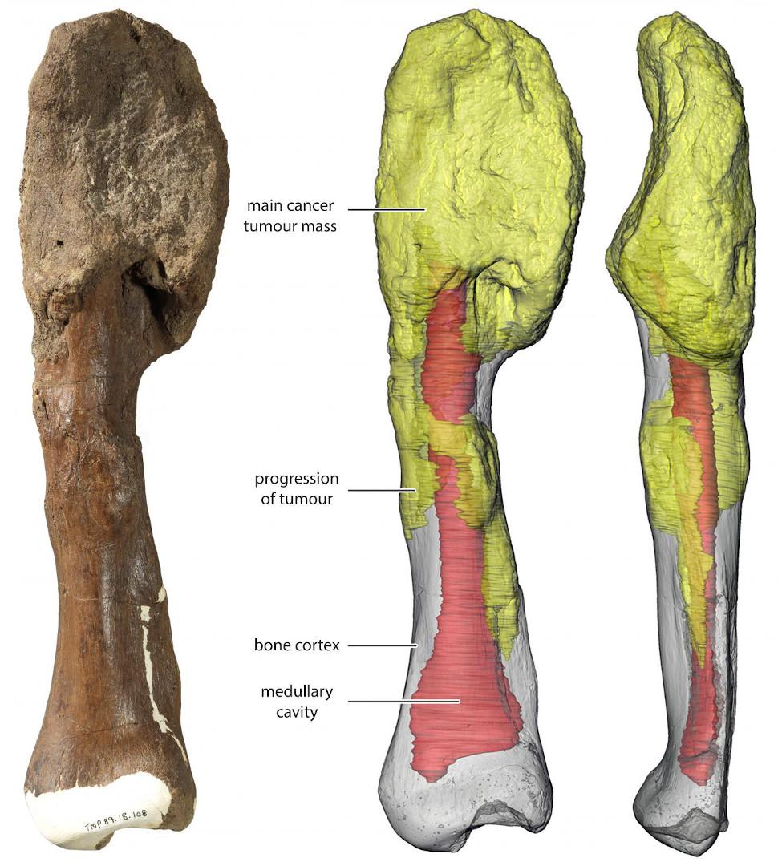 A massa principal do tumor esta no topo do osso e pode ser vista em uma reconstrução 3D na cor amarela; em vermelho e cinza é o osso normal, com o vermelho significando a cavidade medular. Crédito: Royal Ontario Museum/McMaster University