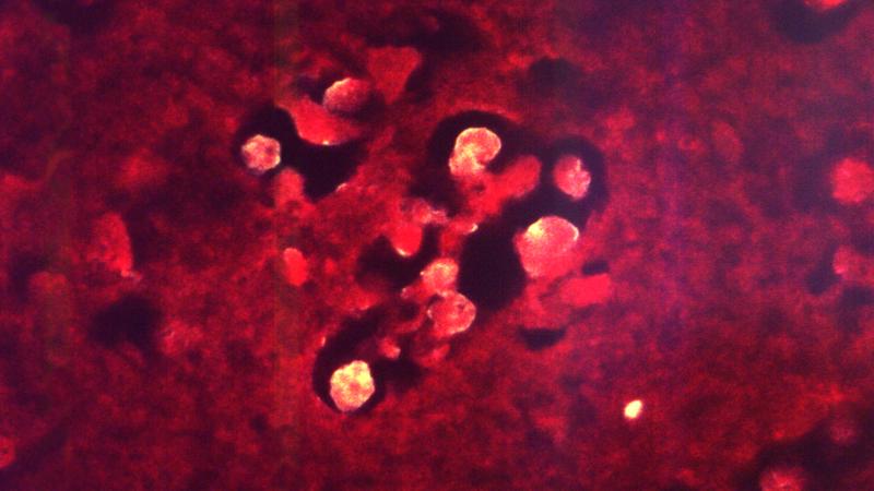 Texas agora tem que lidar com ameba comedora de cérebro. Crédito: CDC/Dr. Visvesvara