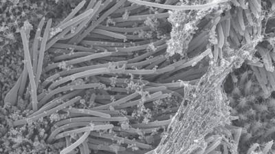 Imagens mostram como o coronavírus infecta os pulmões. Crédito: Camille Ehre/The New England Journal of Medicine