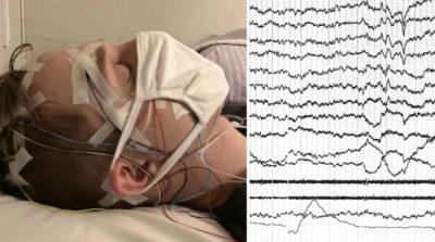 Sinais elétricos do cérebro de uma pessoa adormecida são mostrados no monitor. Imagem: K Konkoly